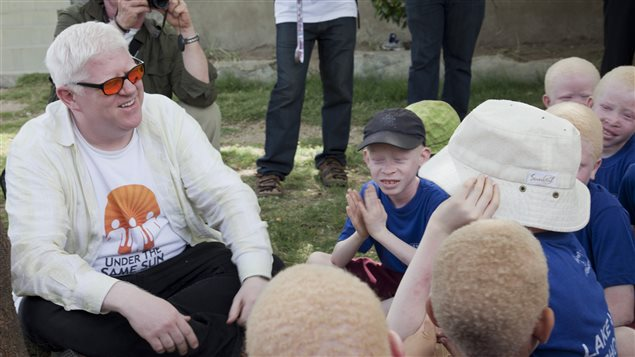 Canadian Peter Ash visits children at Lakeview School in northern Tanzania in 2013 to talk about albinism.