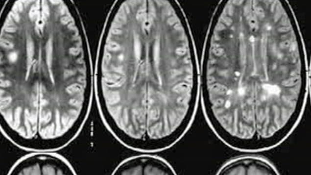 Brain scans of a multiple sclerosis patient. Research in Ottawa now provides hope for MS  sufferers. We see three oyster shaped cells. The interiors are silver and grey and appear somewhat flexible.