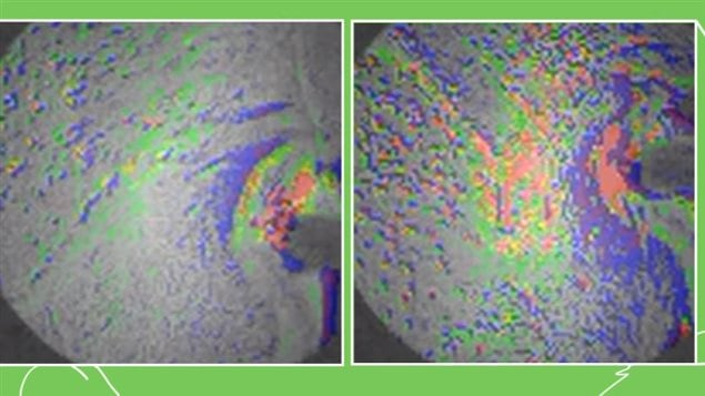 Scans of rat brains showing reactions to stress hormone CRF. The normal mouse at left, and the epileptic mouse at right