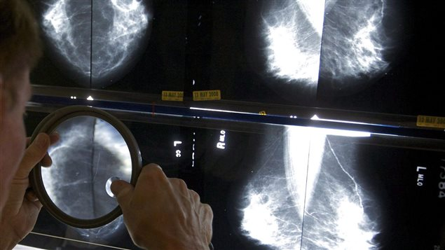 Several studies have found a link between obesity and breast cancer.