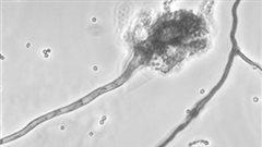 Depuis 2016, six cas de m�ningite ont �t� confirm�s dans la r�gion de Chaudi�re-Appalaches.