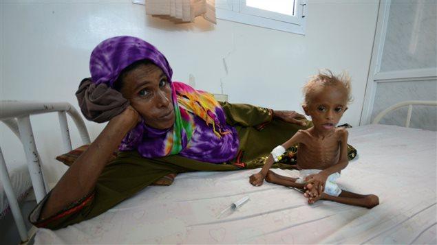 Resultado de imagen para yemen hambruna