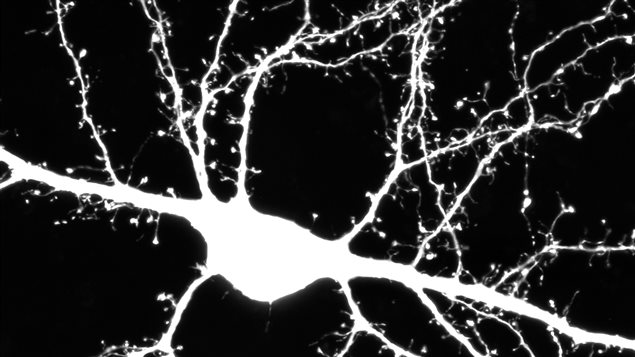 These genetic mutations changes the way brain cells develop and their ability to communicate.