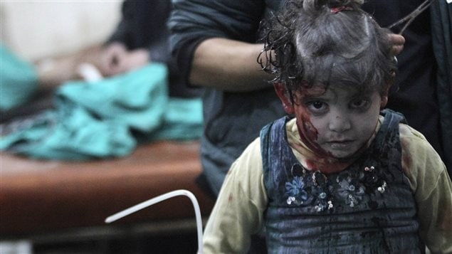 An injured girl waits for treatment in a field hospital after what activists said was an airstrike by forces loyal to Syria's President Bashar al-Assad in the Duma neighbourhood of Damascus January 28, 2015.
