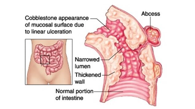 C Section Bowel Movement 2420 Large Intestine Jpg