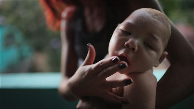 Le virus zika, qui peut causer la microcéphalie, a fait les manchettes de l'actualité scientifique en 2016.