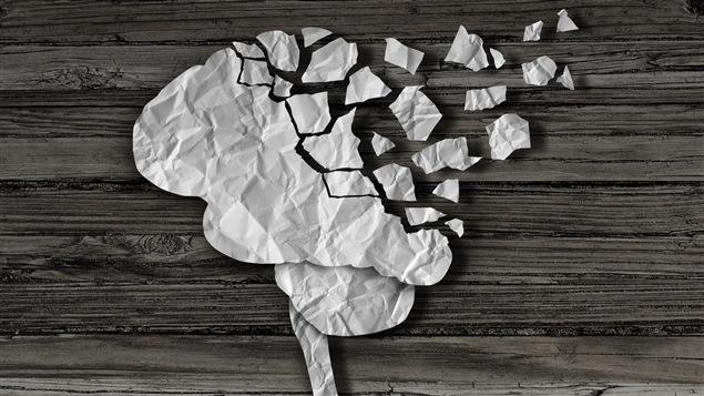 Les lésions au cerveau peuvent causer toute une gamme de comportements inattendus.