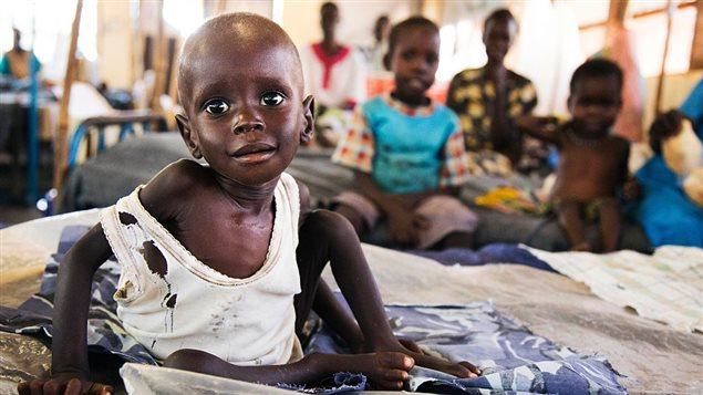 Aleo Tong (1), who suffers severe malnutrition, rests on a bed at the MSF Nutrition centre in Aweil Hospital, on 2 August, 2016. UN agencies warn that almost 5 million people in South Sudan urgently need food, agriculture and nutrition assistance.