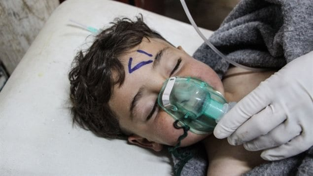 A Syrian child is treated after the chemical attack in Syria's Idlib province.