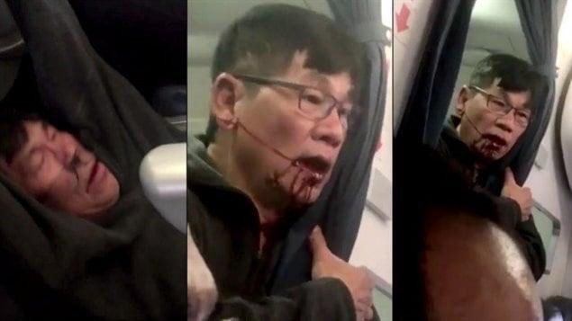 Plusieurs vidéos mises en ligne depuis dimanche montrent un homme littéralement arraché de son siège et tiré par les bras dans l'allée jusqu'à son expulsion d'un appareil de United Airlines.