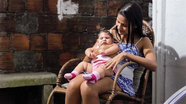 Una joven madre de una bebé afectada por el virus Zyka