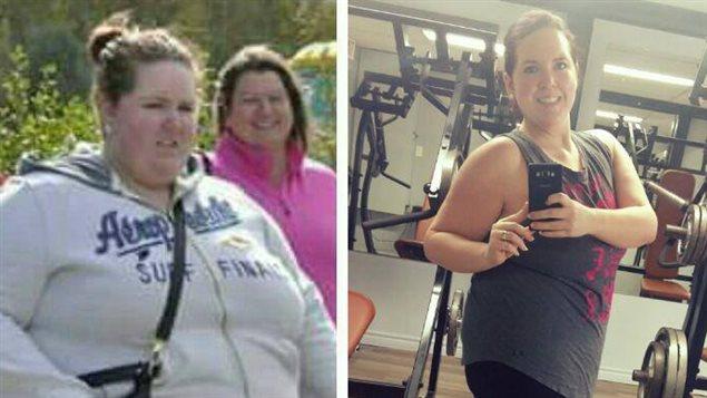 Deux photos de Lucie LeBlanc, qui illustrent sa perte de poids importante