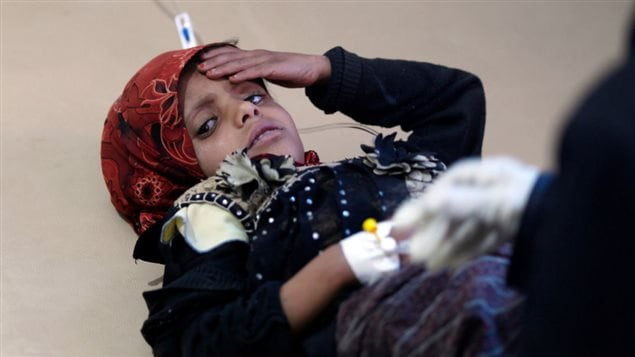 A Yemeni child, suspected of being infected with cholera, receives treatment at a hospital in Sanaa on May 15, 2017.