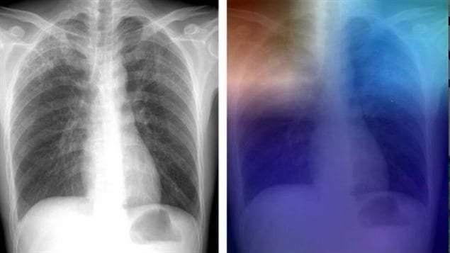 Researchers are training artificial intelligence models to identify tuberculosis (TB) on chest X-rays, which may help screening and evaluation efforts in TB-prevalent areas with limited access to radiologists, according to a new study.