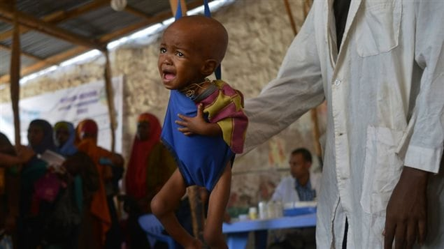 A malnourished child is processed by an aid worker for a UNICEF- funded health programme catering to children displaced by drought, at a facility in Baidoa town, the capital of Bay region of south-western Somalia where the spread of cholera has claimed tens of lives of IDP's compounding the impact of drought on March 15, 2017.