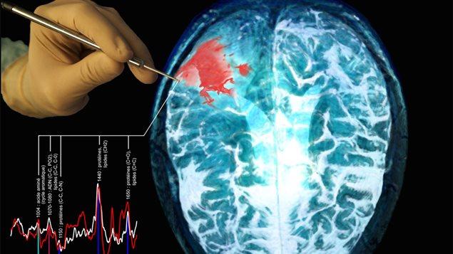 Représentation schématique de la sonde utilisée pour interroger le tissu cérébral pendant la chirurgie. L'image montre une photographie de la sonde tenue par un chirurgien, un spectre Raman associé à du tissu normal et du tissu cancéreux, ainsi qu'une image de résonance magnétique (IRM) d'un patient atteint du cancer du cerveau. La zone rouge représente la tumeur.