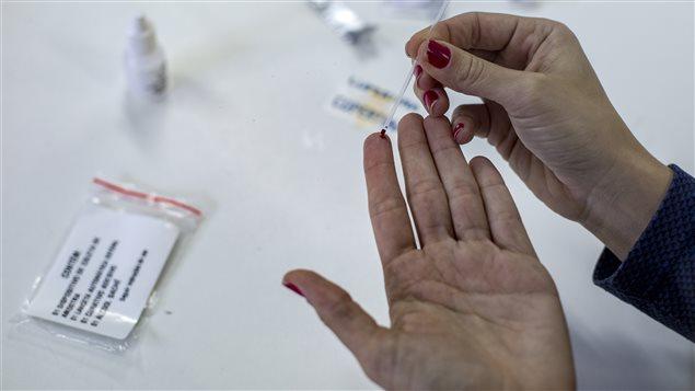 Una gota de sangre es suficiente para hacer el estudio.