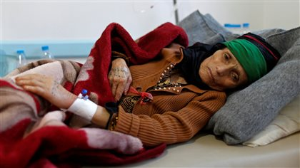 A woman with suspected cholera infection lies on a bed at a cholera treatment center in Sanaa, Yemen, May 15, 2017.