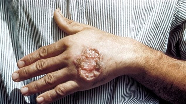 Skin ulcer due to leishmaniasis, hand of Central American adult