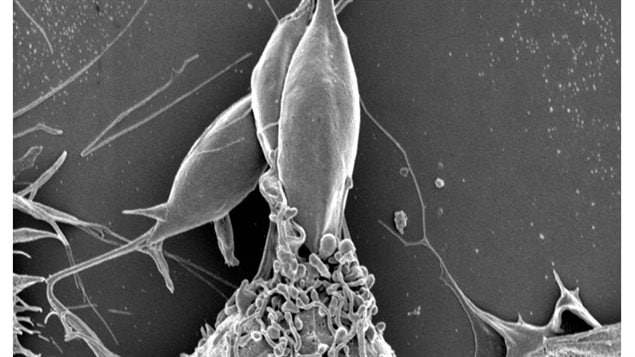 In this electron microscope image, a Leishmania parasite (above) is shown entering a type of immune cell known as a macrophage (below).