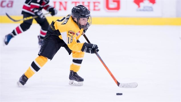 In Canada *Bantam League* ages 11-14 is the first level of hockey in which body checking is allowed. The researchers studied 17 players who had suffered a concussion and compared their still developing brains to those of a non-concussed group.