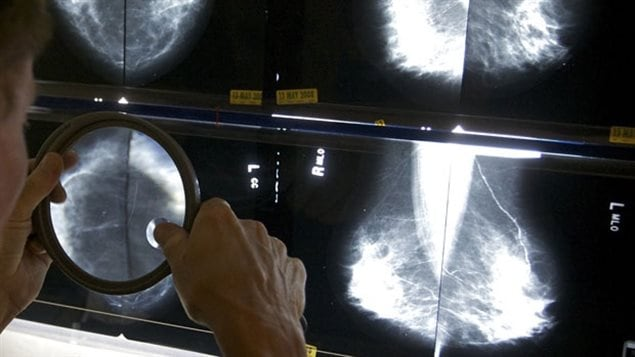 An L.A. radiologist uses a magnifying glass to check mammograms for breast cancer.