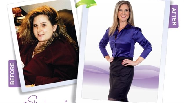 A Slimband ad shows an employee's photo from before and after she underwent gastric band surgery.