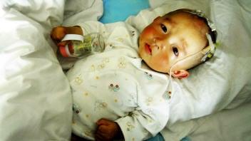 Bébé souffrant de calculs rénaux
