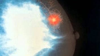 Une tumeur au sein