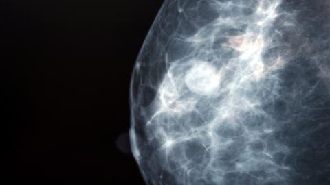 Une tumeur cancéreuse au sein