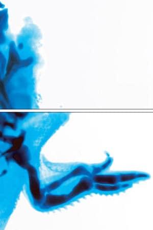 Les effets de la thalidomide