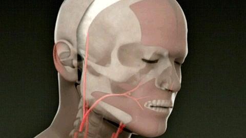 Schéma de la première greffe totale du visage
