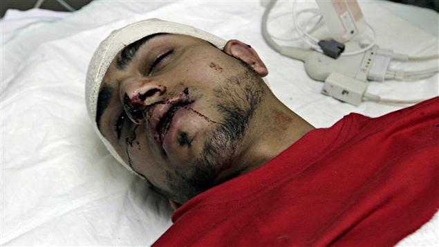 Un blessé est soigné à l'hôpital de Manama
