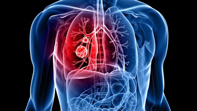 Une tumeur au poumon gauche