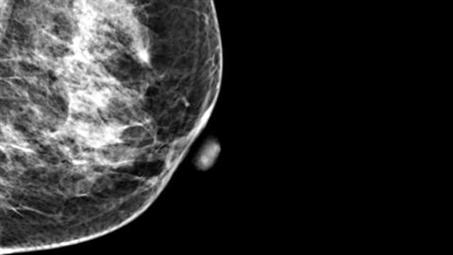 Une tumeur dans un sein