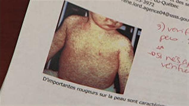 70 cas de rougeole ont été dénombrés sur le territoire du CSSS de Drummondville.