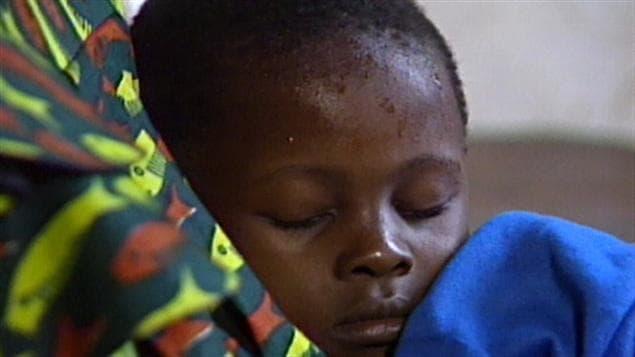 Un enfant atteint de malaria (archives)