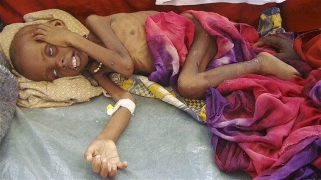 Un enfant souffrant de malnutrition sévère est étendu sur le sol d'un hôpital de Mogadiscio. Ces deux dernières semaines, des milliers de Somaliens ont convergé vers la capitale en raison de la sécheresse.