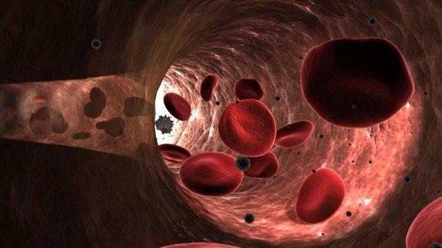 Impression artistique de l'intérieur d'une artère.