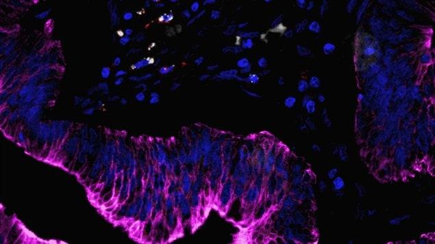 Cancer colorectal humain et les cellules immunitaires