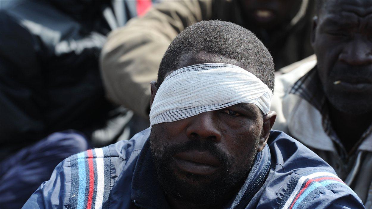 Un mineur blessé à Marikana en Afrique du Sud.