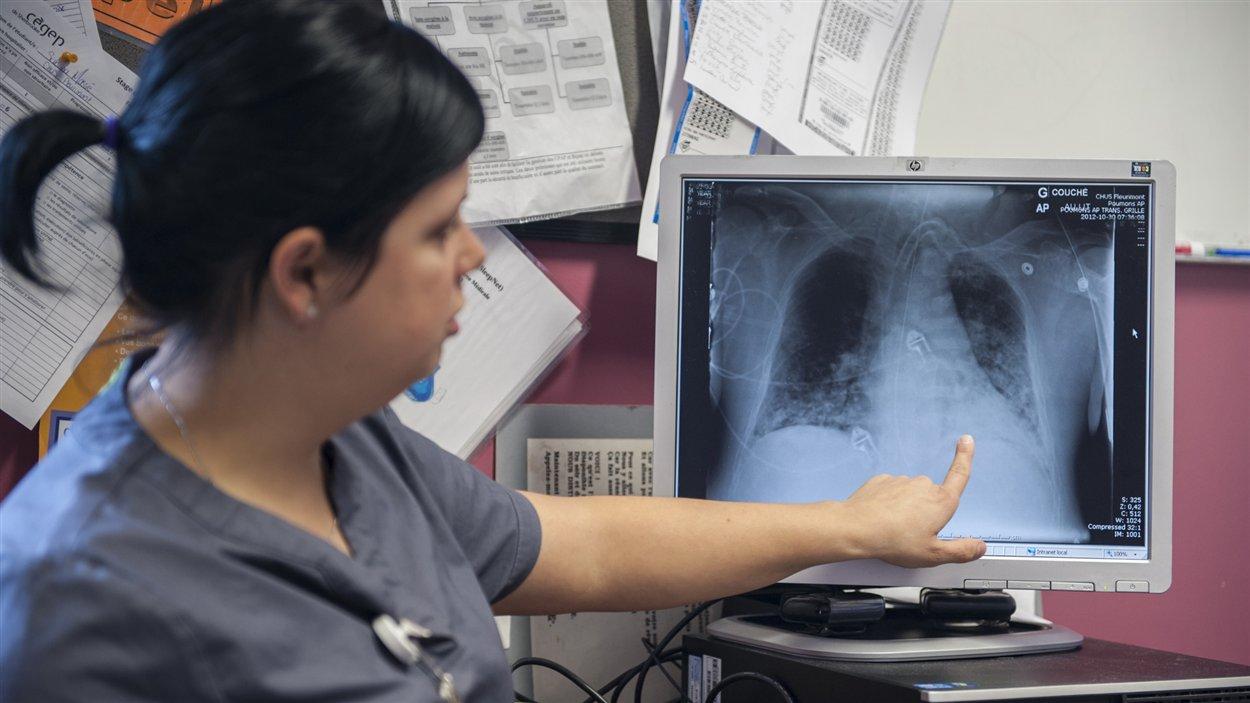 Les inhalothérapeutes sont habiletés à lire des radiographies de poumons. Ils sont les seuls, avec les médecins et résidents, à pouvoir le faire.