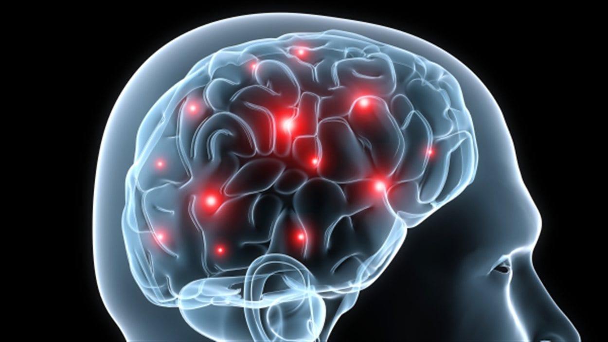 Représentation de l'activité cérébrale d'un homme (archives)