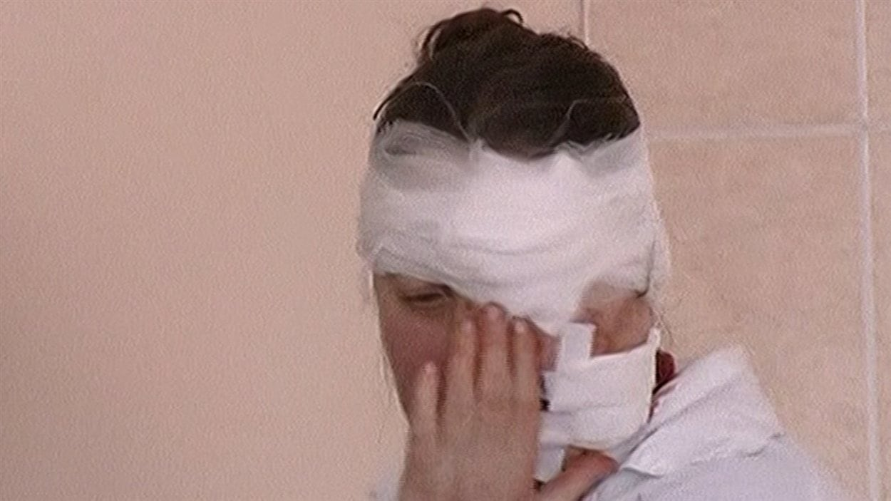 Une femme blessée au visage est traitée dans un hôpital de la région.