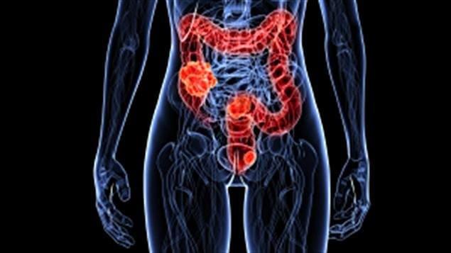 letra de cáncer de próstata de crecimiento lento