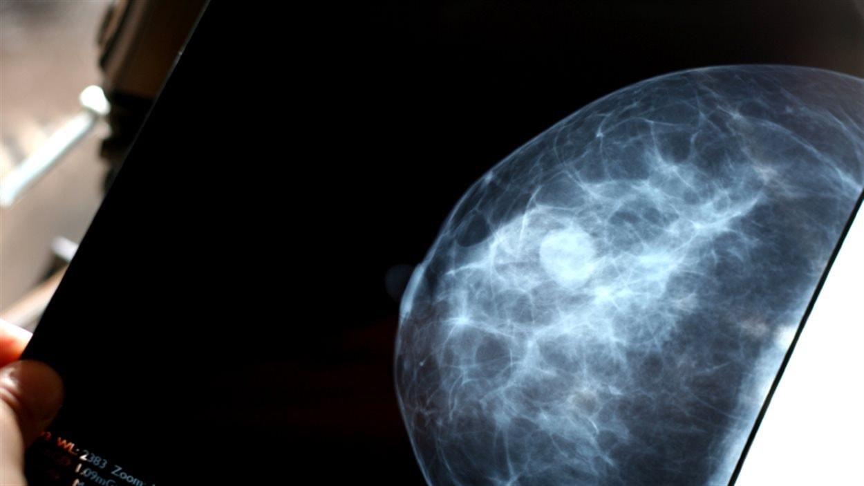 L'image d'un sein