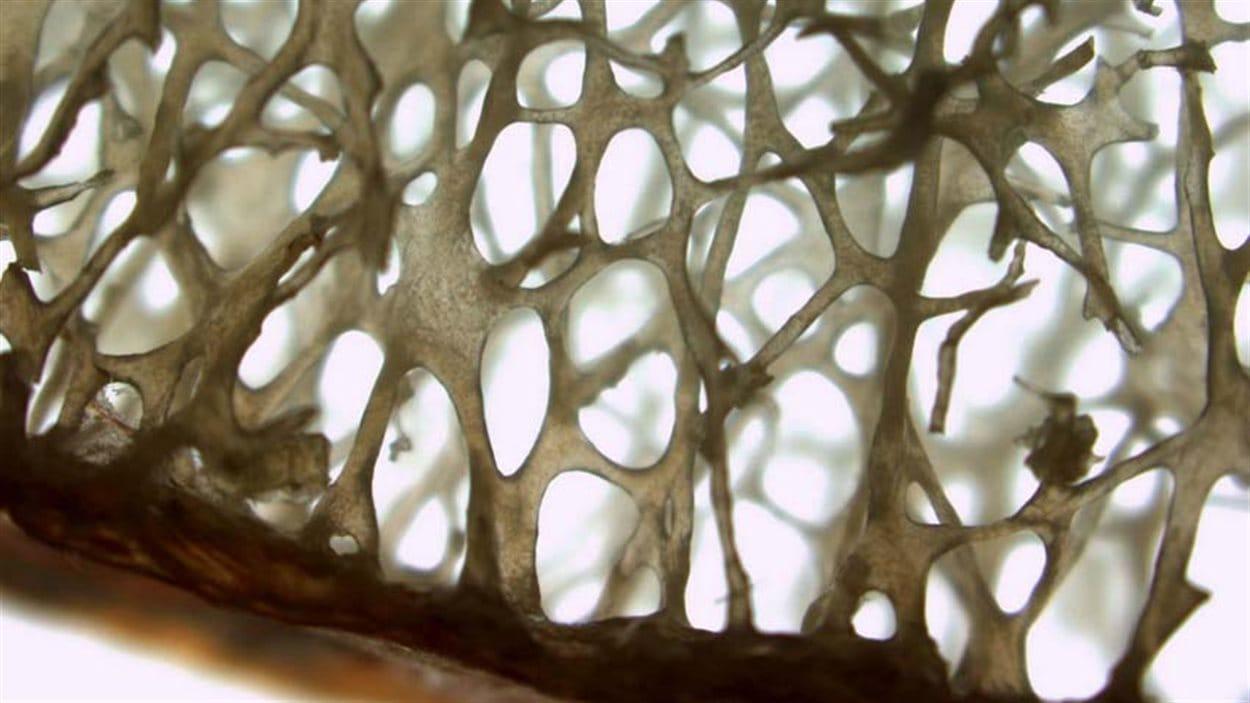 L'architecture trabéculaire joue un rôle important dans la résistance mécanique de l'os.