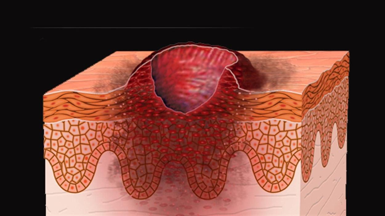 Représentation d'un ulcère cutané