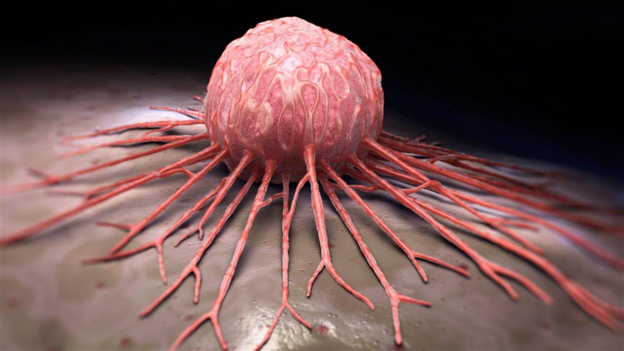 Représentation d'une tumeur cancéreuse.