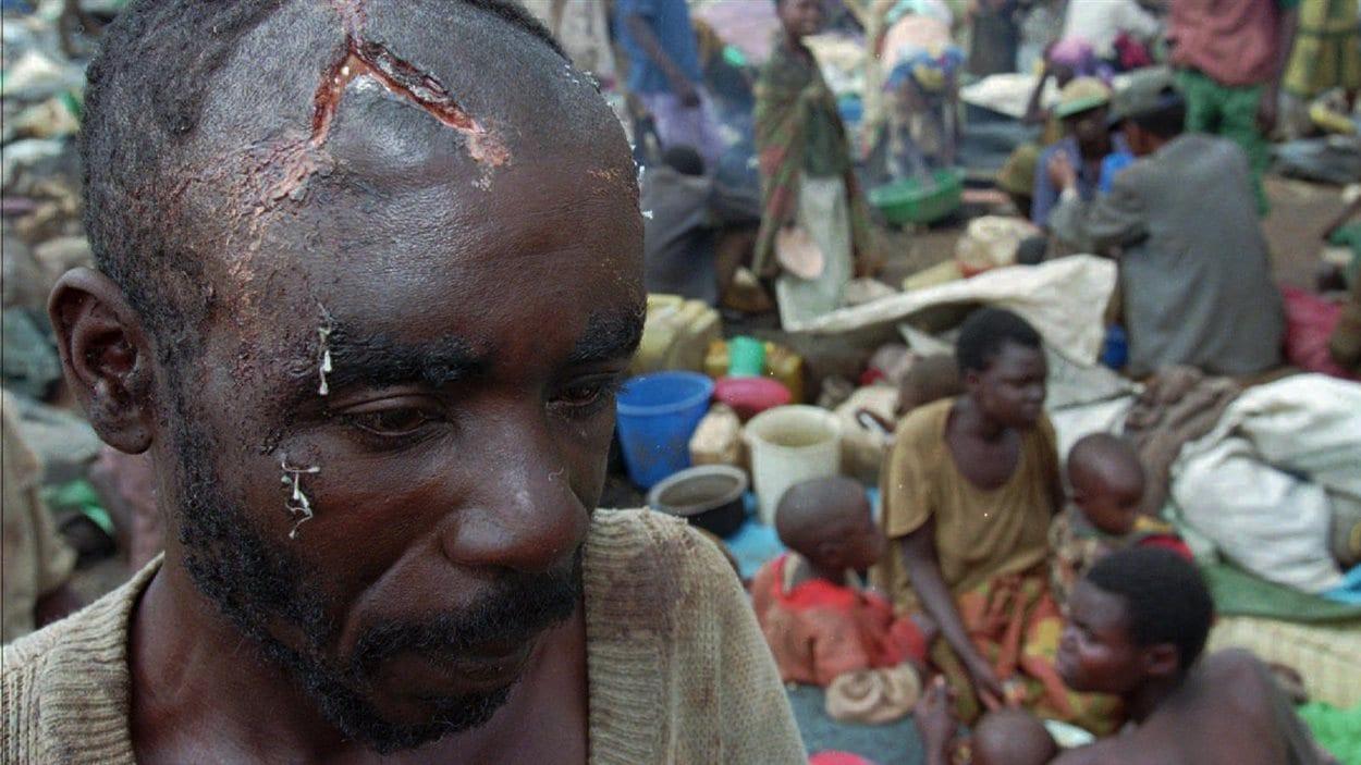 Un réfugié hutu, le crâne ouvert par un coup de machette, se trouve au milieu d'un groupe de centaines d'autres réfugiés entourés par l'armée Tutsi, en avril 1995.